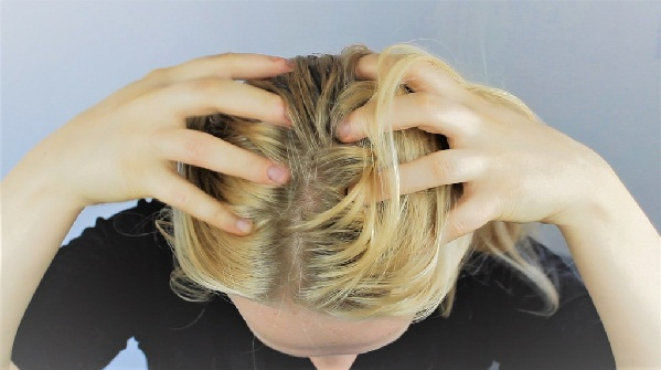 دليلك لعلاج قشرة الشعر بدون طبيب